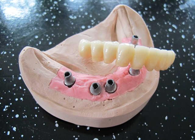 Qualitäts-Zahnersatz mit Zufriedenheitsgarantie für Zahnarztpraxen